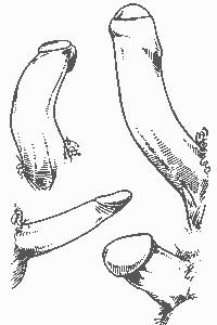 формы пениса мужчины-3