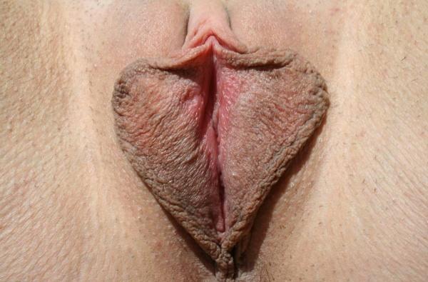 половые губы женщины - 14